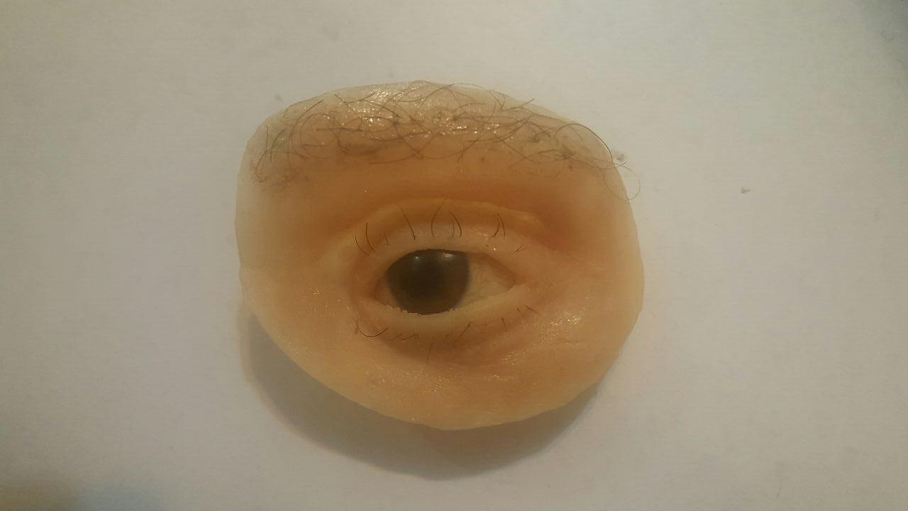 پروتز اربیتال چشم